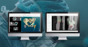 PeekMed saúde ortopedia tecnologia bem-estar Portugal Ventures Grosvenor Startup Braga startup economia